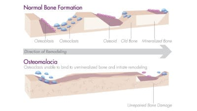 Osteomalacia Illustration