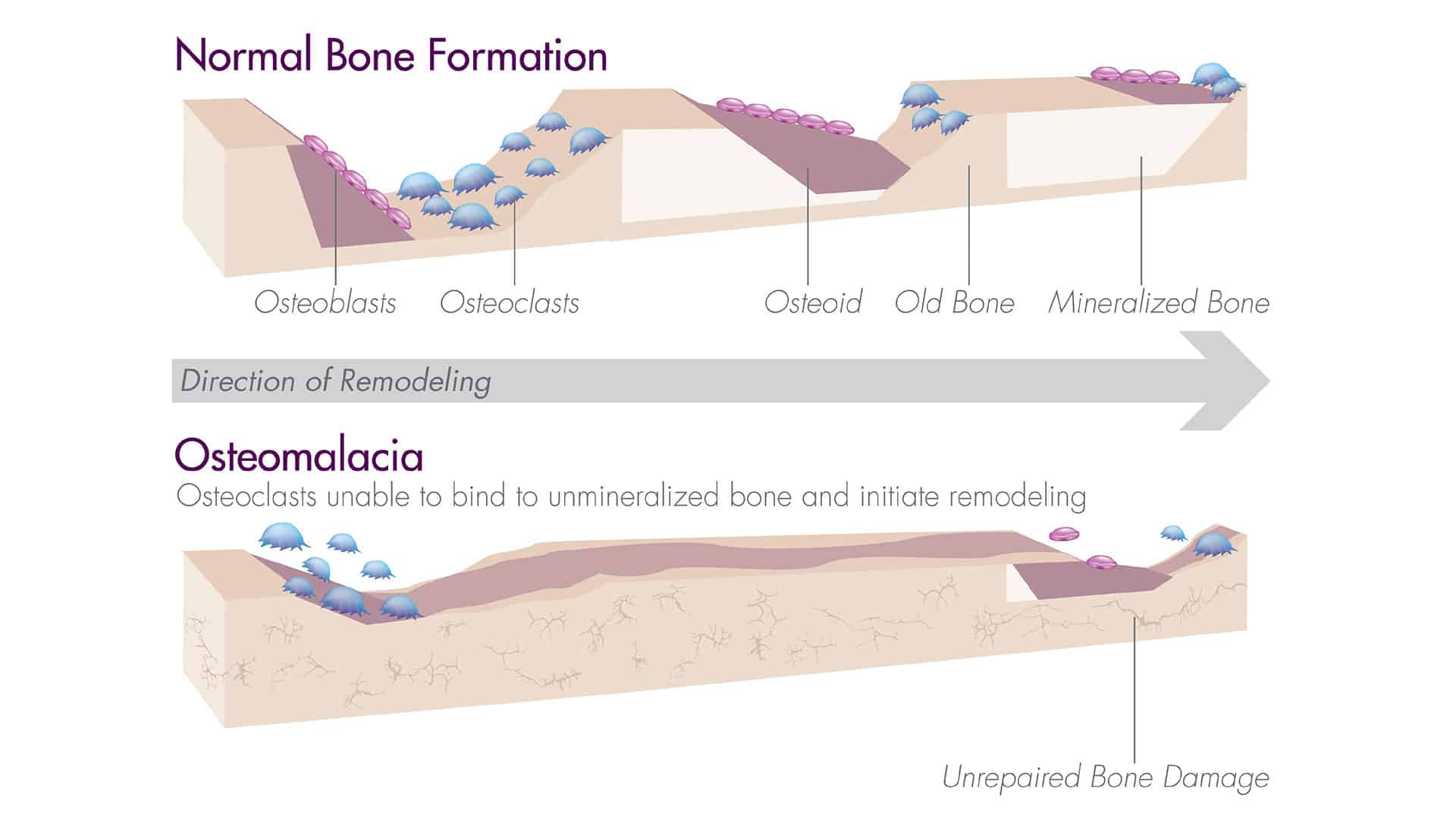 Osteomalacia Illustration